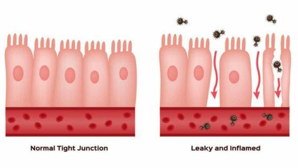 ARE YOUR GUT ISSUES AN INDICATION OF LEAKY GUT?